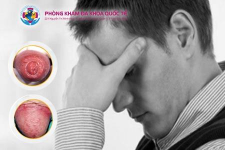 Bệnh viêm bao quy đầu