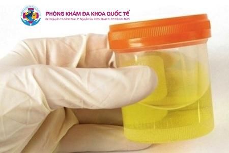 Biểu hiện viêm tuyến tiền liệt