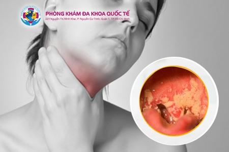 Hình ảnh bệnh lậu ở miệng, vòm họng