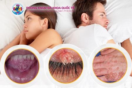 Triệu chứng sùi mào gà ở miệng, tay, mắt