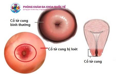 Viêm loét cổ tử cung