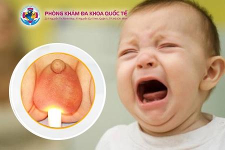 Sưng tinh hoàn ở trẻ em