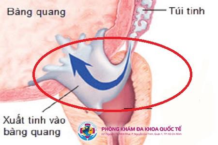 Xuất tinh ngược - tinh trùng trào ngược vào trong